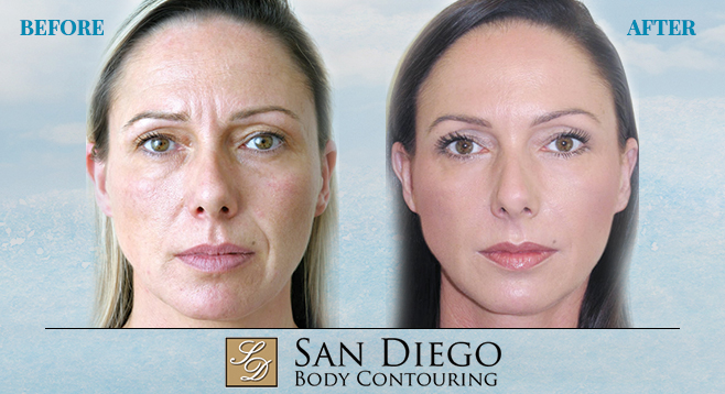 Win a Liquid Facial Makeover | San Diego Reader