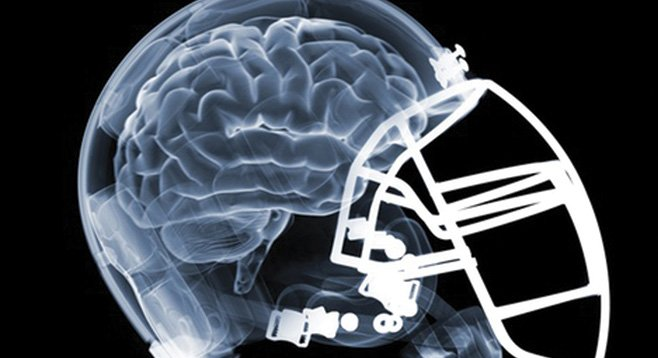 News studies note the similarity between sports and military brain trauma.