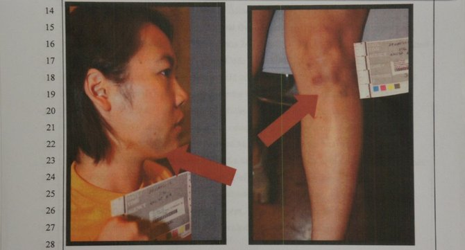 Evidence photos of face and leg of alleged victim, after reported attack.