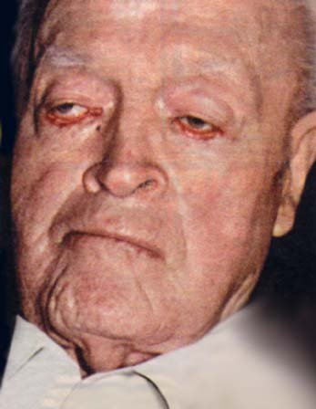 Prolonged exposure to Bob Hope's eyes, like sunlight, will cause permanent damage.