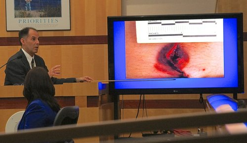 "Dr. Campman explained the ""contact wound"" to the jury. Photo Eva."