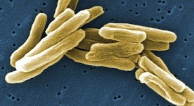 Bacterium that causes tuberculosis (CDC photo)