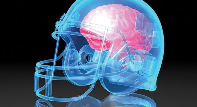 These brain-concussion lawsuits will stretch on until somebody invents brain-replacement surgery.