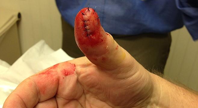 David's freshly stitched thumb
