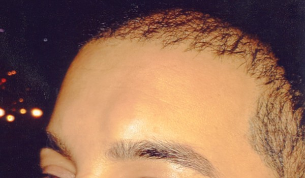 Bump on Singh's forehead