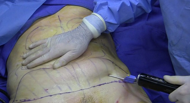 Liposuction of the belly of a 40-year-old woman