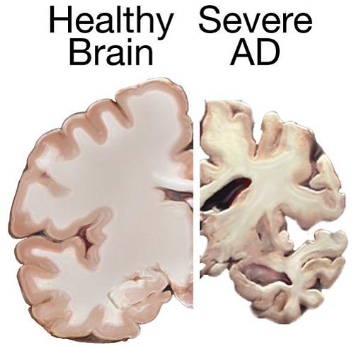 Contrast between a healthy brain and one with Alzheimer's disease