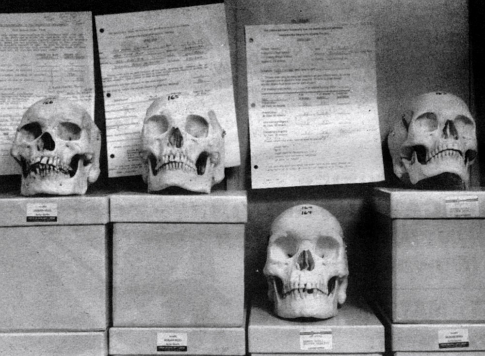 Skulls for check-out at Learning Resource Center. The classes of 1982 and 1983 caused a stir among the UCSD School of Medicine faculty when as a group they scored poorly on the national board examinations.
