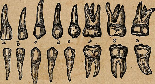 Vintage teeth, because anything else would be too horrible.