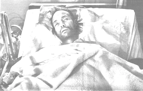 Ernesto, a 36-year-old AIDS patient, who has been bedridden since November, looks much sicker now than Max did before he died.