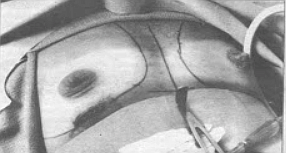 Breast augmentation opening incision