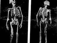 Skeletons of John Merrick, one of history's most disfigured human beings