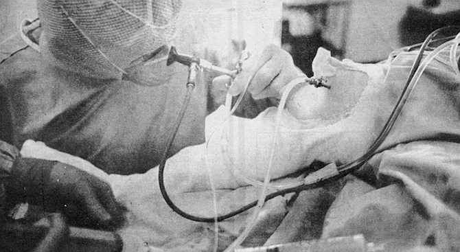 Arthroscopic surgery engenders professional jealousy among some colleagues. - Image by Jim Coit
