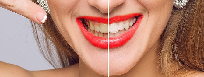 The natural aging process affects the enamel of our teeth causing them to lose that white, bright natural color. Read more https://delraydentalwellness.com