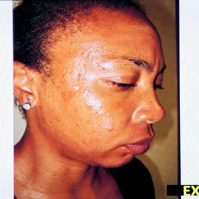 Evidence photo, blood on Asiatae's face