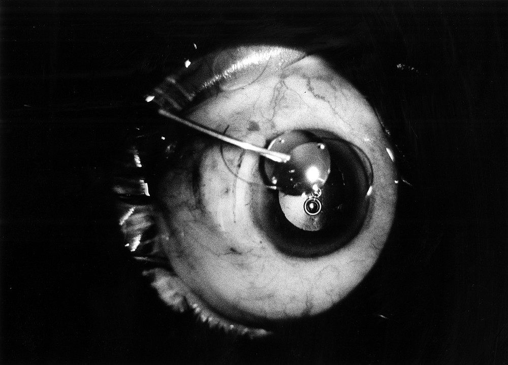 Phacoemulsification by Ronald Friedman as seen though microscope (hairlike coils are sutures)