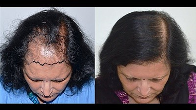 Hair loss can be treated with hair transplant surgeries and for that, you need to visit best hair restoration doctor. Get a full list of the world's best hair transplant surgeons and choose the surgeons by reviewing all their patients before and after hair transplant photos. https://www.regrowhair.com/category/hair-restoration-physicians/