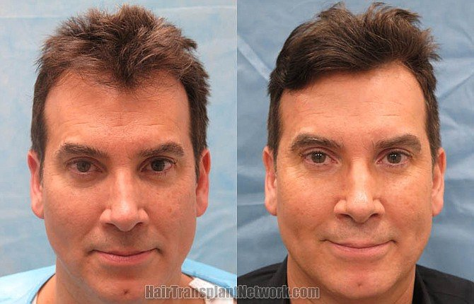 Hair Transplant becomes successful and gives undetectable results even under close inspection when done by qualified and experienced hair transplant doctors in the right way. Find out the best hair restoration surgeons of the world producing incredible hair transplant results at Hair Transplant Network. https://www.hairtransplantnetwork.com/