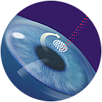 Detect your eyeglasses with the help of Lasik surgery Mn. Discover near eyesight and remove eye problems through Chi surgery treatment. Look at the best service here. Schedule now!  https://www.chuvision.com/procedures/vision-correction