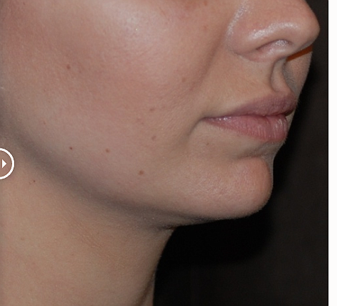 The technique used to perform lip augmentation from lip plumping injections will vary depending if the patient is having a surgical or non-surgical procedure. https://andersonplastic.com/our-procedures/face/lip-augmentation/